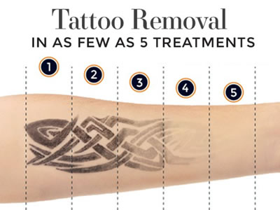 Dr. Yates – Tattoo Removal